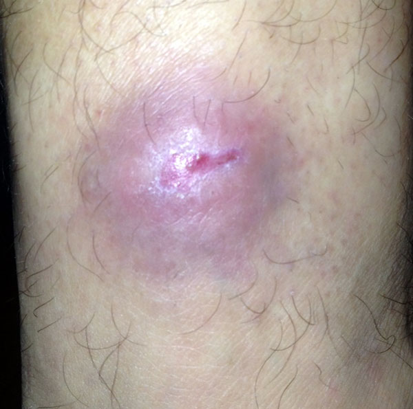 Buruli Ulcer - Healed Over