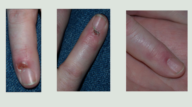 Finger Healed with Clay